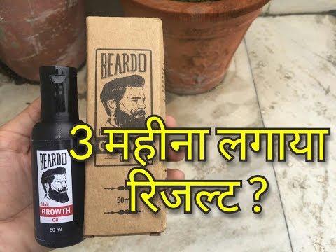 Beardo Beard Growth Oil | After Using 3 Months - Buy or Not ? - क्या मिला रिजल्ट ? - Hindi
