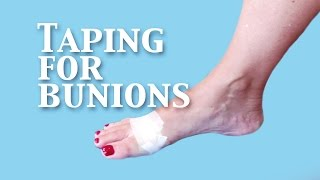 Taping For Bunion Pain Relief Now