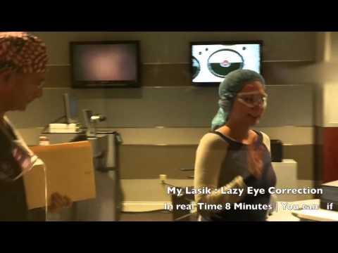 My Lazy Eye Correction | Lasik