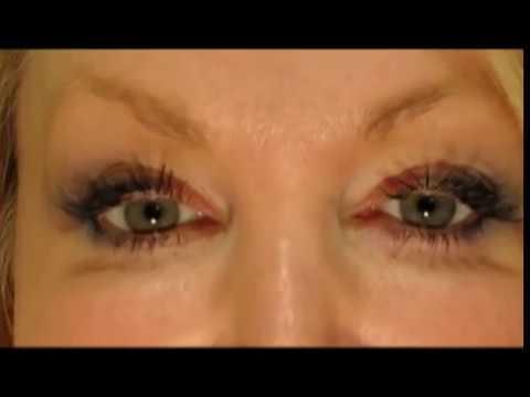 #1 Secret How to Have White, Whiter Eyes, Part 1. No More Brown, Bloodshot eyes video eye whitening
