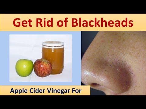 Apple Cider Vinegar to Get Rid of Blackheads - Apple Cider Vinegar