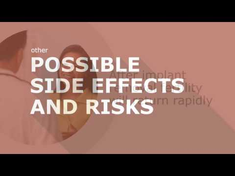Highly Effective Reversible Contraceptive Methods