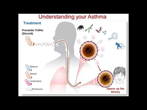 Understanding Your Asthma Part 3: Steroid Medication