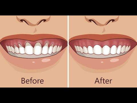 Receding Gums Treatment! Works Fast! Fix Gum Recession Subliminal Subconscious Hypnosis Binaural Bea