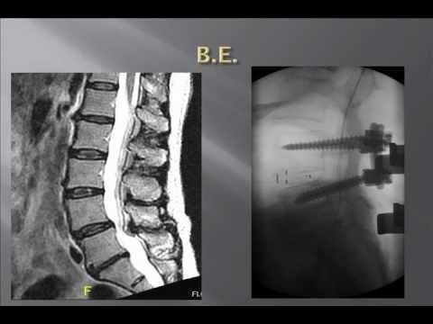 Advances in Management of Spinal Stenosis and Degenerative Disc Disease 2010: Dr Yuri Falkinstein