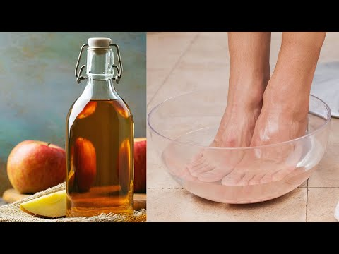 What Happens If You Dip Your Feet In Vinegar One Night A Week! Apple Cider Vinegar Foot Soak Recipes