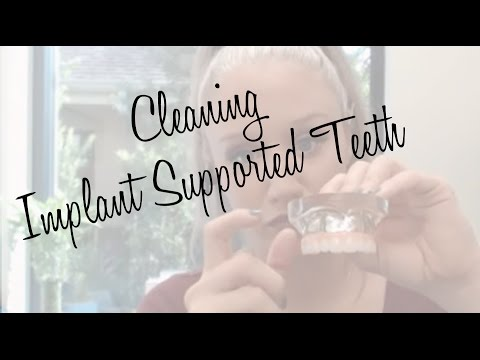 Cleaning Implants Tutorial and Info