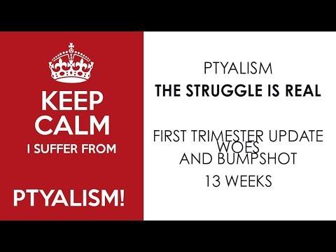 First Trimester Update + Bump Shot + Ptyalism - 13 weeks