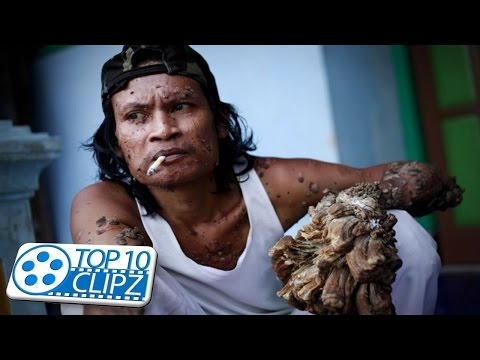Top 10 Most Gruesome Diseases - TOP 10 CLIPZ