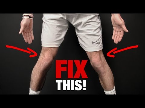 How to Fix Knee Valgus (KNEES THAT CAVE IN!)