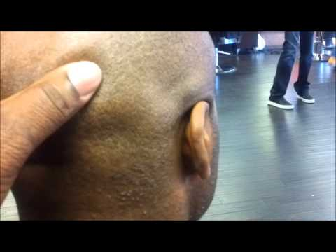 How To Really Bump Up A Man's Head & Face