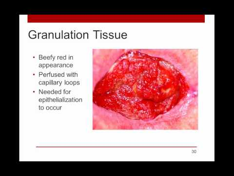 WoundRounds Free Webinar - PUSH Tool for Monitoring Pressure Ulcer Healing: A Practical Guide
