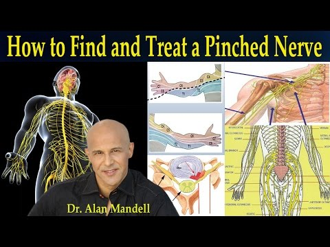 How To Find and Treat a Pinched Nerve (Simple Neurology) - Dr Mandell