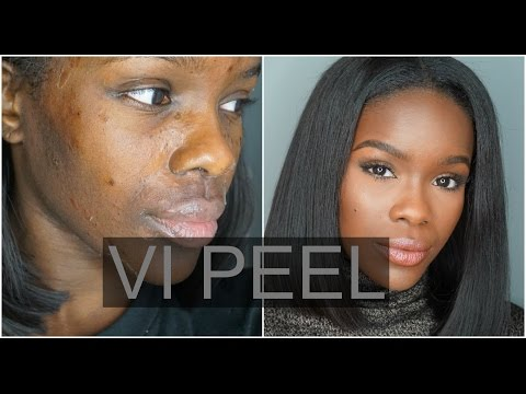 My 1st Chemical Peel Experience! | VI Peel