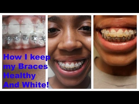 How I keep my Braces CLEAN AND WHITE: Ceramic and Metal!