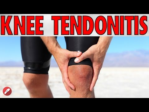 How To Deal With Knee Tendonitis!