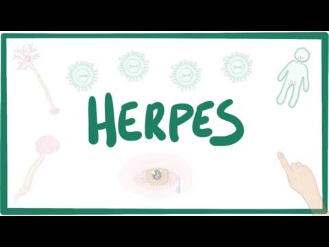 Herpes (oral & genital) - causes, symptoms, diagnosis, treatment, pathology