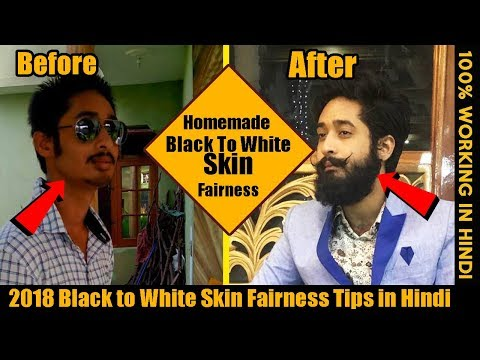 2018 Get Black to White Skin at Home | Remove Dark Spots, Acne, Pimples in 1 week | Fairness Tips