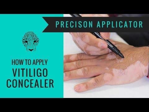 How to Cover Vitiligo - Zanderm Precision Applicator