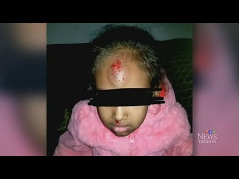 Five-year-old girl pushed off school bus by older kids