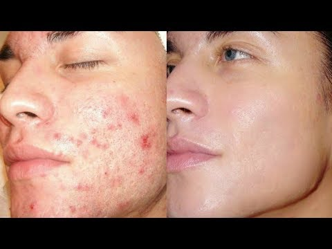 How To Get Rid of Acne & Pimples In Just 21 Days / Get Clear Skin, Remove Acne, Remove Pimples