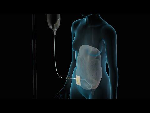 Dialysis | Nucleus Health