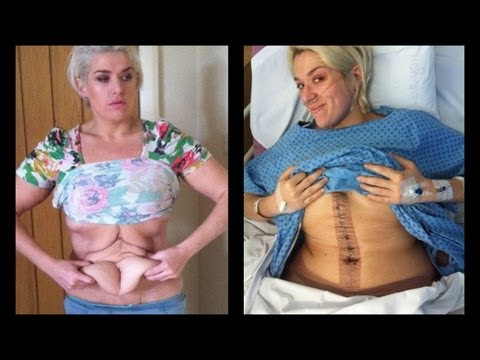 My tummy tuck BEFORE and AFTER