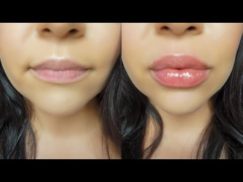 How To Get BIG HUGE Lips Without Injections Or Overlining ! ACTUALLY WORKS !! Candylipz !