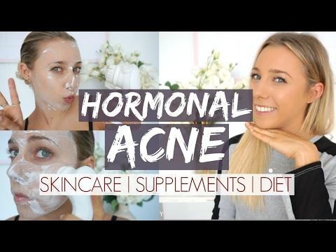Hormonal Acne Update | Skincare + Supplements + Diet