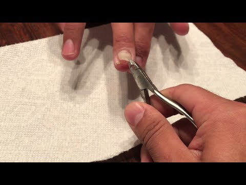 Finger nail gets ripped off!