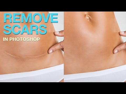 How to Remove a Scar in Photoshop
