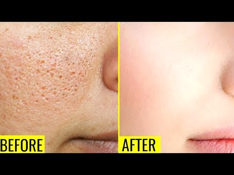 How To Get Rid Of Large OPEN PORES Permanently In Just 3 Days | Home Remedies