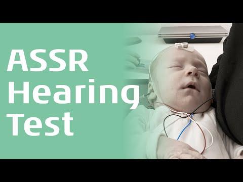 ASSR - An introduction