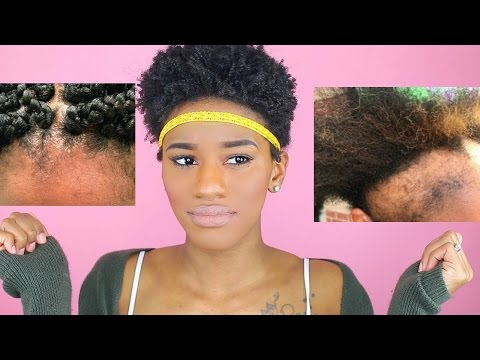 4 Hairstyles That Will RUIN Your Natural Hair!!! (Styles That Cause Hair Loss, Breakage, Thinning!)