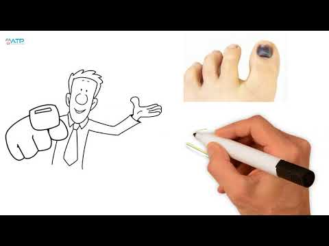 Prevent protect black bruised toenails with Aamzing Toe Pads