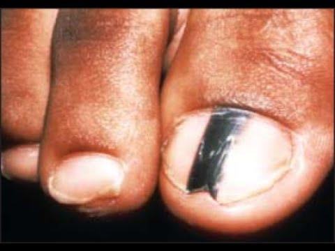 Black Toenail or Fingernail Streaks - *Home Treatment*