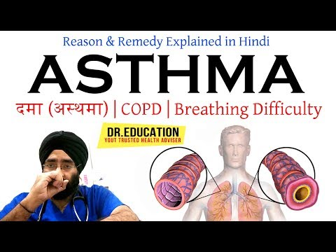 How to Treat Asthma दमा (अस्थमा) COPD | Breathing Difficulty | Cough| in Hindi |Dr.EDUCATION