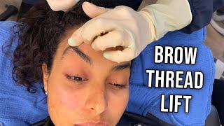 2020's Hottest Cosmetic Trend: Thread Lifts! Brow Lift with Threads