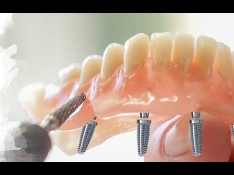 Want Dental Implants in Just ONE Day!  You MUST Watch This!