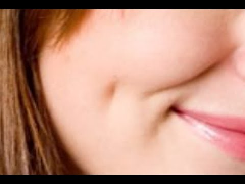 How to Get Dimples Naturally Permanently at Home