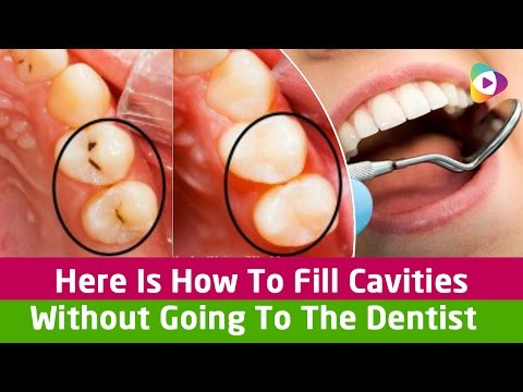 Here Is How To Fill Cavities Without Going To The Dentist! - Health Tips