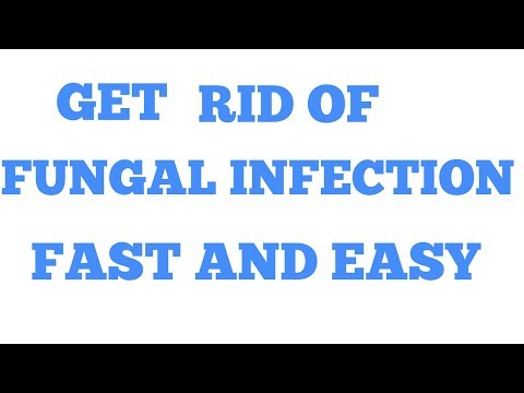 HOW TO GET RID OF FUNGAL INFECTION NATURALLY SUPER EASY AND FAST!!!