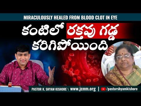Mrs. Vijaya Lakshmi - Miraculously healed from blood clot in eye - Telugu