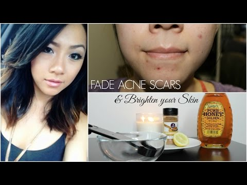 How to Fade Acne Scars and Brighten Your Skin at Home - DIY Remedies  | MISSYANYI