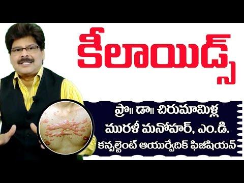 Keloids | Ayurvedic Treatment | Prof. Dr. Murali Manohar Chirumamilla, M.D. (Ayurveda)