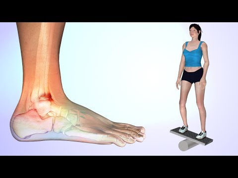 7 Best Exercises for Anterior Ankle Impingement Rehabilitation