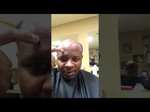 How to make the hair line perfect on the manweaveunit