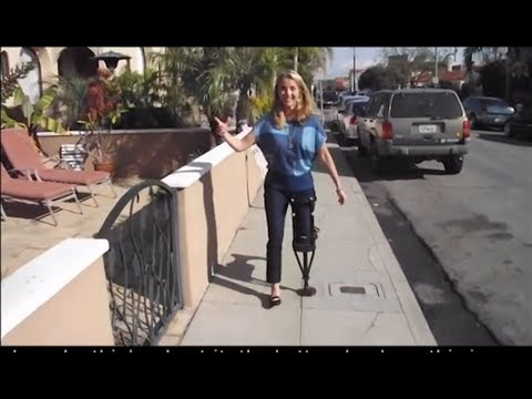 Walking With a Torn Calf Muscle - Kristi Walks on the iWALK2.0 for the First Time