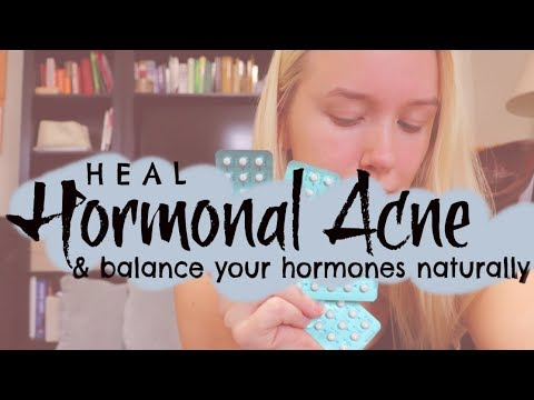 Healing hormonal acne; Balance your hormones naturally and heal your skin! Going off the pill VLOG 2