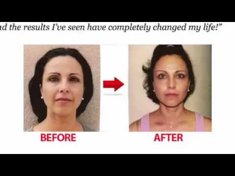 Face Fitness Formula How to Lose Fat Cheeks
